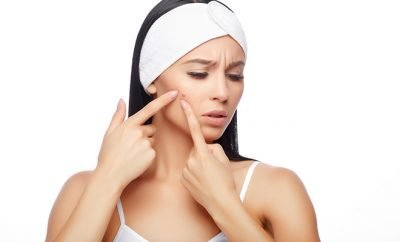 5 home remedies for acne_Featured_Hauterfly