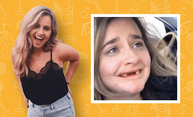 FI-Woman-loses-front-teeth-after-drinking-mimosas-in-viral-video