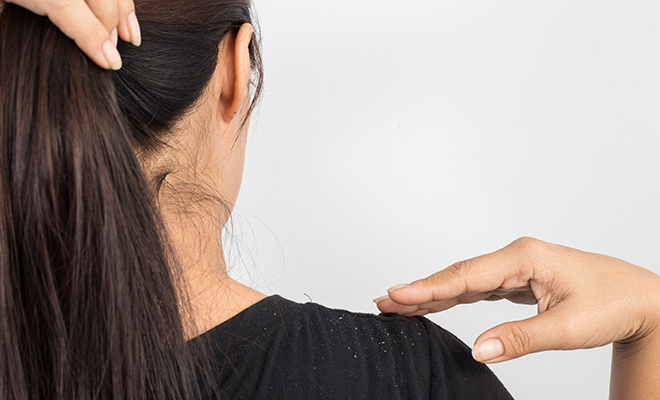 inpost - beauty story - turmeric remedies -dandruff remover (option 2)