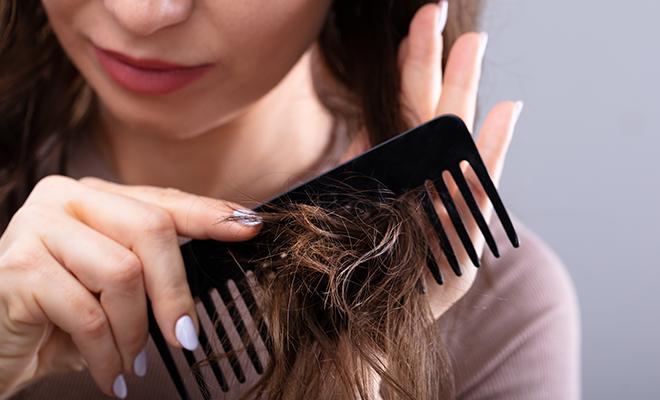 Hauterfly Female Balding Prevention
