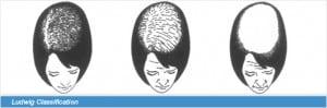 Hauterfly Female Balding classification